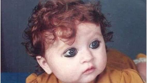 Dziecko było wyśmiewane za swój niezwykły wygląd. Wyrosło jednak na piękną dziewczynę i zaakceptowało siebie