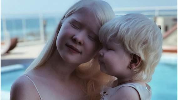 Siostry albinoski podbijają media społecznościowe