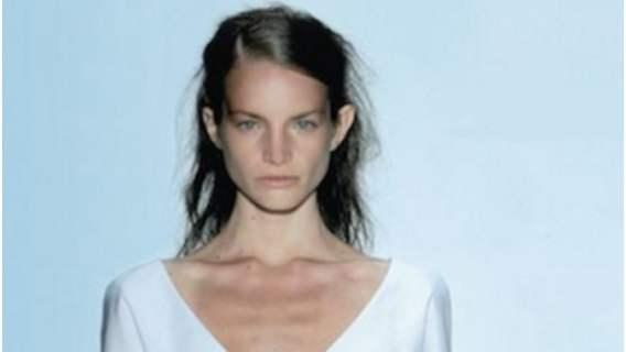 Modeling zmienił całkowicie wygląd kobiety