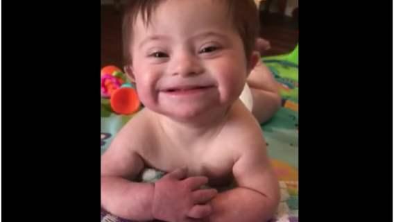 Dziewczynka z zespołem Downa śmieje się w uroczy sposób