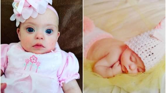 Dziewczynka z zespołem Downa zaczęła karierę modelki zaraz po urodzeniu. Jak wygląda lata później?